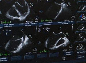 Szmery sercowe i skierowanie na badanie USG serca